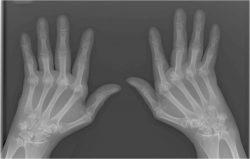 rheumatoid arthritis evolve case study quizlet